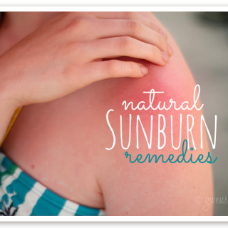 Natural sunburn remedies that you may already have on hand for instant relief when you get too much sun
