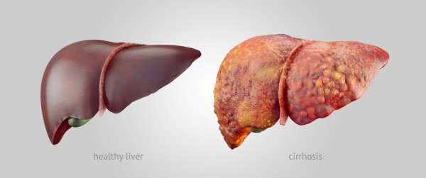 healthy-liver-vs-cirrhosis